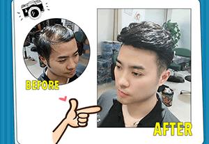 脱发怎么办?织发补发隐形发际线!